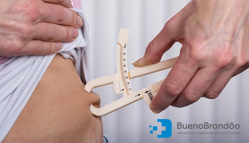 Plano de Saúde Cobre Cirurgia Bariátrica?