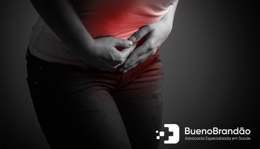 Plano de Saúde deve cobrir Tratamento de Endometriose?