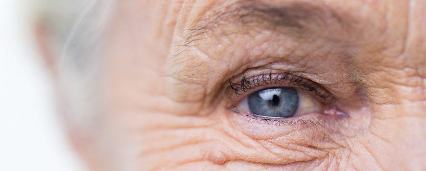 Plano de saúde cobre lente intraocular